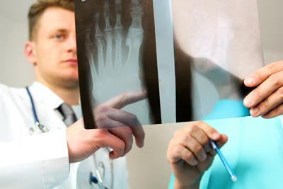 foot and ankle surgery in auburn al